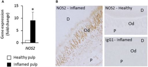 NOS2 transcript and protein are up-regulated in inflamed pulps from decayed teeth compared to healthy ones. (A) Analysis of NOS2 gene expression in healthy and inflamed pulps with real-time RT-PCR (n = 3). *p < 0.05. (B) Immunohistochemical localization of NOS2 protein in healthy and bacteria-challenged inflamed pulps. No NOS2 staining was found in healthy sample, but odontoblasts and subodontoblast cells were stained in inflamed pulp beneath the caries lesion. D, dentin; Od, odontoblast layer; P, pulp. Data shown are representative of results obtained from independent experiments performed with two healthy and two carious teeth.