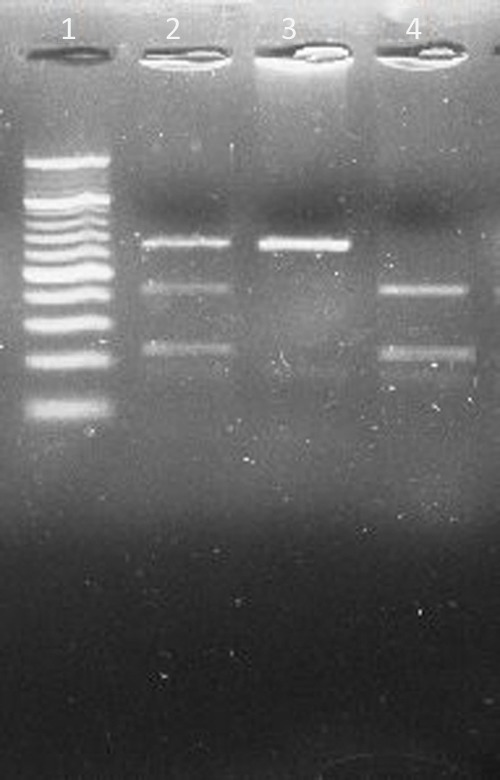 Restriction digestion (MseI) products of IL13Rα1 +1398A//G polymorphism on 3% Agarose gel. Lane 1: 20 bp ladder. Lane 2: heterozygous AG genotype (130, 85, and 45 bp). Lane 3: homozygous mutant GG genotype (130 bp). Lane 4: homozygous wild AA genotype (85 and 45 bp).