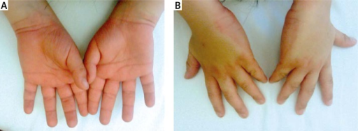 Erythema and edema of the hands with sharp demarcation at the level of the wrists of healthy skin