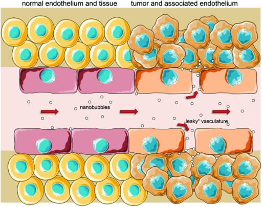 Passive targeting is enabled by 'leaky' vessels with fenestrae up to several 100 nm in tumor-associated endothelium and a poor lymphatic drainage, increasing both likelihood and retention time of nano-sized particles in the interstitium (EPR effect). After extravasation, NB/particles could also actively target specific surface molecules on cancer cells (schematic illustration, not drawn to scale).