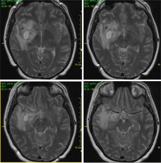Native initial MRI (2003).Notes: A mass-like lesion is situated in the right temporal lobe with cystic and infiltrative portions and perifocal vasogenic edema (Native TSE T2 WI transversal scans).Abbreviations: MRI, magnetic resonance imaging; TSE T2 WI, turbo spin echo T2 weighted images.