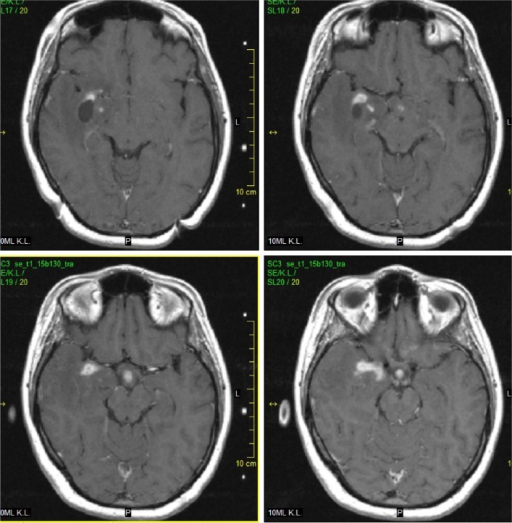 Initial post-gadolinium MRI (2003).Notes: There is nonhomogenous irregular post-gadolinium enhancement in the mass-like lesion. Also, enhancing infiltration in the hypothalamus is clearly depicted. (SE T1 WI after gadolinium enhancement, transversal).Abbreviations: MRI, magnetic resonance imaging; SE T1 WI, spin echo T1 weighted images.