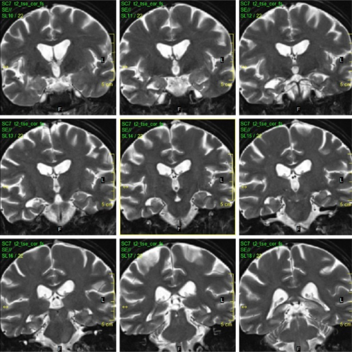 Last MRI (2015).Notes: On the last MRI, diffuse brain atrophy and severe hippocampal atrophy/sclerosis were found. (TSE T2 WI, coronal).Abbreviations: MRI, magnetic resonance imaging; TSE T2 WI, turbo spin echo T2 weighted images.