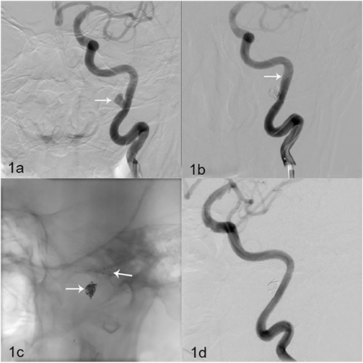 Solitaire AB stent (6 mm × 30 mm) assisting complete occlusion in one patient.(a) Figure depicts a 43-year-old woman with an unruptured aneurysm. DSA revealed a left C3 artery wide-necked aneurysm (6.5 mm × 4.2 mm) (white arrow). (b) Solitaire AB stent (6 mm × 30 mm) (white arrow) assisting embolization. DSA immediately after the procedure revealed complete occlusion of the aneurysm and parent artery patency. (c-d) DSA at the 6-month follow-up revealed no aneurysm development, and revealed parent artery patency.