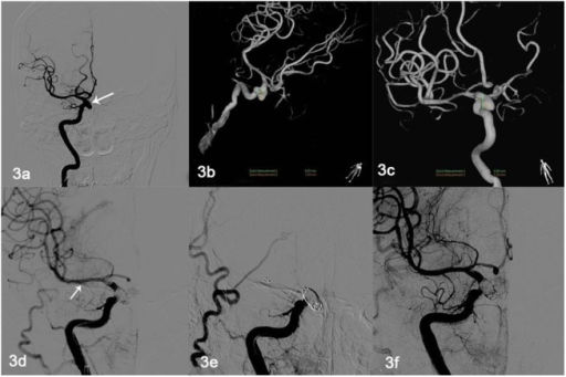 Thromboses throughout the stent in one patient.(a–c) Figure depicts a 46-year-old man with right carotid-ophthalmic wide-necked ruptured aneurysm (8.69 mm × 7.69 mm). (d) Solitaire AB stent (6 mm × 30 mm) assisting embolization (white arrow); there was parent artery patency. (e) Acute stent thrombosis 3 h later; and 0.3 million U urokinase was administered through the microcatheter. (f) Repeat radiography revealing expedited blood flow through the stent.