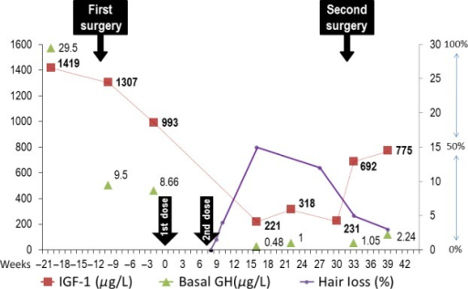 "IGF-1 and GH levels before and after Lanreotide Autogel (LA) treatment. Hair loss represented in percentage as referred by the patient. Week ""0"" and ""8"" indicates the moment of administration of first and second LA doses (Arrows)."