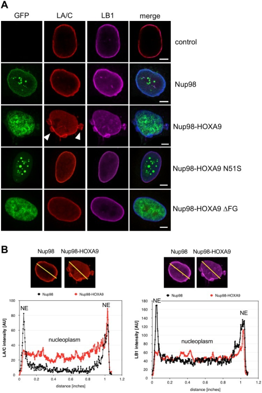Nup98-HOXA9 affects lamin A/C and lamin B1 distribution.HeLa cells were transiently transfected with GFP constructs and fixed and stained after 24 hours for immunofluorescence microscopy. (A) Lamin A/C (LA/C, red) and lamin B1 (LB1, magenta) concentrate at the nuclear envelope (NE) in HeLa cells expressing Nup98 (green), but relocate to the nucleoplasm in cells expressing Nup98-HOXA9. White arrowheads point to some lobules decorating the NE. Disruption of the homeodomain of HOXA9 (Nup98-HOXA9 N51S) and the FG domain of Nup98 (Nup98-HOXA9 ΔFG) prevent the relocation of the lamina proteins. Scale bars, 5 μm. (B) Fluorescence intensity of LA/C (left) and LB1 (right) staining was determined along the axis shown as line in the fluorescence images and plotted as a graph.