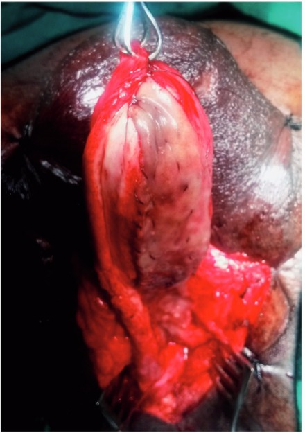 Graft placement covering entire length of stricture and extending into fossa navicularis.