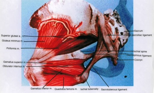 superior gluteal nerve; superior gluteal artery; gluteus minimus muscle; piriformis muscle; gemellus superior muscle; obturator internus muscle; gemellus inferior muscle; quadratus femoris muscle; ischial tuberosity; sacrotuberous ligament; sacrum; dorsal sacroiliac ligament; ischial spine; sacrospinous ligament; coccyx