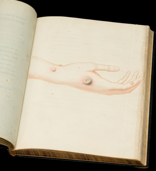<p>Image of a color etching of a hand and wrist with cowpox lesions, from Edward Jenner's Inquiry into the causes and effects of the variolae vaccinae, facing p. 32. The etching, delicately touched up with water color, shows several stages of cowpox, from early blistering to its later dimpled rupture.</p>
