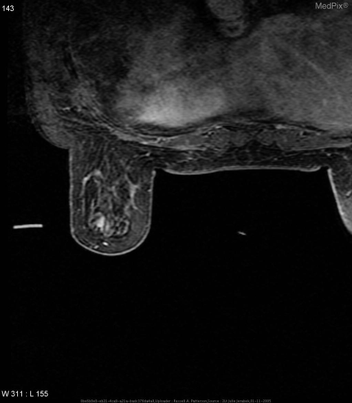 MRI of the breast shows needle for biopsy outside the breast