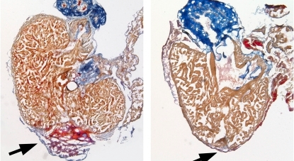 A heart injury (arrow, left panel) repairs without a trace (right panel) in zebrafish. Mammals lack the regeneration process responsible for such scar-less repair.