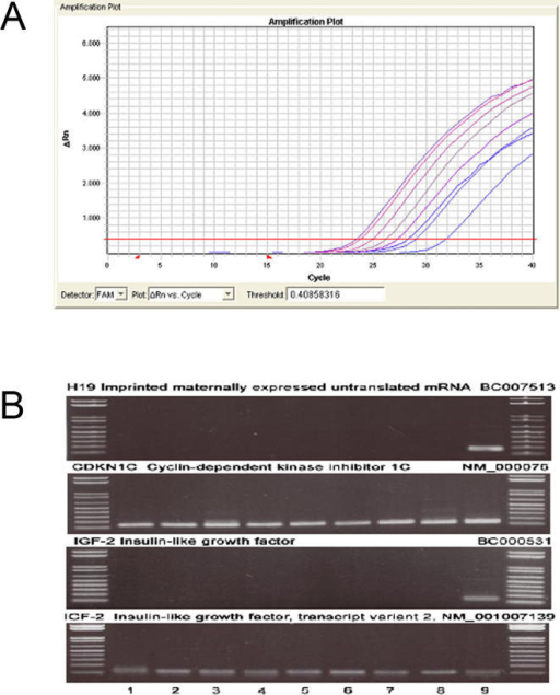 Expression of H19, CDKNIC and 1GF1 in mature human dopaminergic neurons.(A) Amplification plot for tyrosine hydroxylase copy RNA from neuromelanin-positive cells collected by laser capture microdissection in 4 control and 4 Parkinson disease cases (samples 1–8 in Fig. 2). For all samples analyzed, a sequence specific for tyrosine hydroxylase (Ct 22-32) was amplified, indicating the selection of dopaminergic cells. (B) Images of ethidium bromide gels showing the PCR products amplified from reversed-transcribed RNA extracted from the substantia nigra. Lines 1–8 correspond to amplified copy RNA from neuromelanin (+) neurons collected by laser capture microdissection from Parkinson's disease patients (1–4) and age-matched controls (5–8). Line 9 corresponds to total RNA isolated from the substantia nigra of an age-matched control. DNA size markers (1 kb plus ladder, Life tech) are shown on left and right.