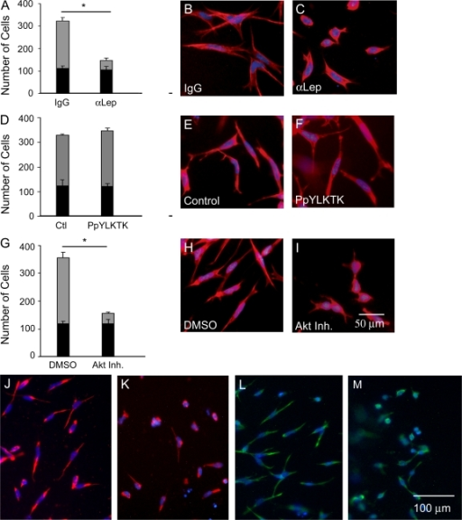 Effects of leptin, STAT3, and Akt inhibition on EMT in the endocardial cushions. Quantification of endocardial (black bars) and mesenchymal cell numbers (gray bars) after AVCs were cultured with 5 μg/ml IgG or α-leptin antibody (A), vehicle or 1 mM PpYLKTK (D), and DMSO or 5 μM Akt inhibitor XI (G). Cellular morphology was evaluated by F-actin staining (red): IgG (B), α-leptin antibody (C), vehicle (E), PpYLKTK (F), DMSO (H), and Akt inhibitor XI (I). Vimentin staining after treatment with IgG (J), α-leptin antibody (K), DMSO (L), and Akt inhibitor XI (M). DAPI, blue. Error bars represent SD. *, P < 0.05.