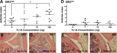 TL1A promotes adverse bone pathology of AIA in a DR3-dependent manner. (A) AI with increasing administration of TL1A in DR3het mice. Horizontal lines mark means of graphed points. Open symbols represent DR3het mice; filled symbols represent DR3ko mice. (B and C) Representative images from DR3het mice with no (B) or 100 ng (C) TL1A added. Bone erosions (arrowheads) are shown. (D) AI with increasing administration of TL1A to DR3ko mice. (E and F) Representative images from DR3ko mice with 1 (E) or 100 (F) ng TL1A added. Bars, 200 μm. One-way ANOVA showed significance of TL1A addition to DR3het but not DR3ko mice. *, P < 0.05. Each point in the summary graphs represents a single animal. One representative experiment of two is shown.