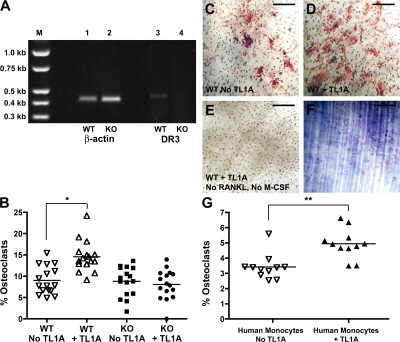 TL1A promotes DR3-dependent in vitro osteoclastogenesis. (A) RT-PCR of DR3 in BMM. In vitro osteoclastogenesis assays were performed as described in Materials and methods. Osteoclast numbers were estimated by counting multinucleated TRAP+ cells. (B) Effect of TL1A on proportion of osteoclasts generated in presence of RANKL and M-CSF. *, P = 0.0003. Each point represents a single ivory disc from experiments on DR3wt (open symbols) or DR3ko (filled symbols) mice. Four discs from four mice were counted for each treatment. Lines mark means of graphed points. One representative experiment of two is shown. (C–E) TRAP staining of BM cells from DR3wt mice on discs with RANK-L + M-CSF and no TL1A (C) or 10 ng/ml TL1A (D) and TL1A (E), but no RANKL and M-CSF. Bars, 50 μm. (F) Toluidine blue staining of ivory discs showing pit-forming ability of osteoclasts generated in vitro. Bar, 150 μm. (G) Effect of TL1A on osteoclastogenesis from adherent human peripheral blood mononuclear cells and proportion of osteoclasts in cultures shown with (▿) or without (▴) exogenous TL1A added. **, P = 0.0013. One representative experiment of two is shown.