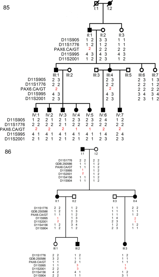 "Family structure and haplotype analysis of two Chinese families with aniridia. Pedigree and haplotype analysis of family 85 and 86 with aniridia showed ""loss of heterozygous"" segregation with the microsatellite marker PAX6.CA/GT (family 85), D11S995, and D11S2001 (family 86), respectively. All markers are on chromosome 11, listed in descending order from the centromeric end. Squares indicate males; circles indicate females; slashed symbols indicate deceased; solid symbols indicate affected; open symbols indicate unaffected."