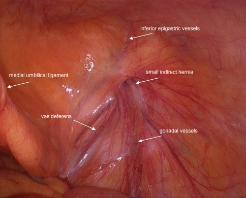 Photograph of right-sided inguinal anatomy with small i ...