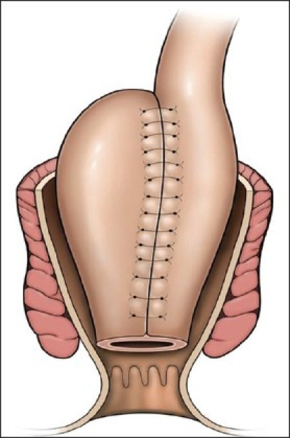 Line diagram depicts an ileoanal pouch. | Open-i