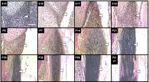 VVG staining of elastic fibers in LF during development, maturation and aging.VVG stains collagen (pink), nuclei (black) and elastic fibers (black). Elastic fibers of the LF (arrows point just inside edge of tissue) were first detected at P7 as thin and lacking orientation, but were thicker and aligned axially by P35. By P2-yrs, elastic fibers appeared fragmented in several areas. Scale bar: 50 µm.