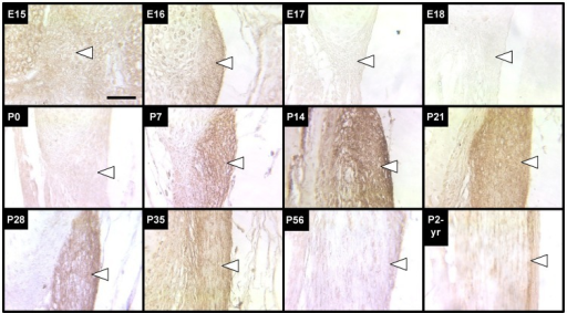 Tropoelastin immunostaining of LF during development, maturation and aging.Tropoelastin staining of LF (arrows point just inside edge of tissue) increased in intensity significantly first at P7 and remained high until P28. Staining intensity gradually decreased after P28 to a consistently low coloration that persisted throughout adulthood. Scale bar: 50 µm.
