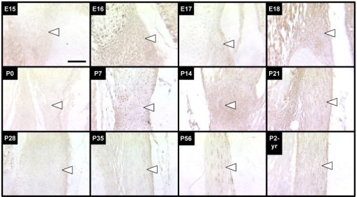 LOX staining of LF during development, maturation and aging.LOX staining of LF (arrows point just inside edge of tissue) was intermittently detectable through the stages studied, with higher staining intensities detected at E16, E18, and P7 through P21. Scale bar: 50 µm.