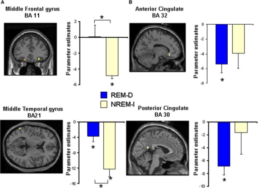 Statistical maps for some of the regions showing significant differences in activation during performance of the Emotional Reactivity Task (high + low emotional reactivity trials) after (A) non-REM sleep interruptions (NREM-I) and (B) REM sleep deprivation (REM-D), relative to baseline sleep. Maps are thresholded at p < 0.001 (uncorrected). See Table 3 for all significant activations. Bar graphs show the corresponding differences in activation between baseline and experimental night for the REM sleep deprivation and non-REM sleep interruption groups. Coordinates are in MNI space. Asterisks above brackets indicate significant post-hoc differences between groups whereas asterisks above individual bars represent significant differences from zero (p < 0.05).
