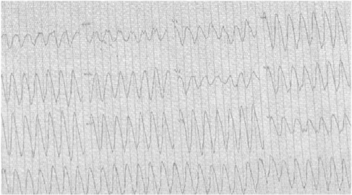 Electrocardiography recording from the patient's cardiac stress test while taking lacosamide 400 mg/day, illustrating ventricular tachycardia.