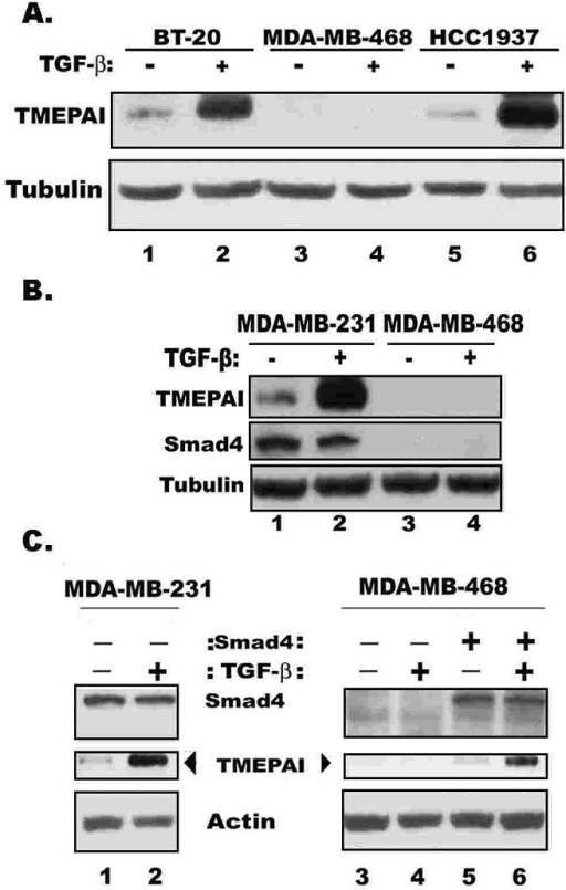 Smad requirement in TMEPAI expressionA) TMEPAI expression in three different triple negative breast cancer cell lines without or with TGF-β for 24h. B) Relative expressions of TMEPAI and Smad4 in MDA-MB-231 and MDA-MB-468 cells. C) Exogenous expression of Smad4 using a retroviral vector in MDA-MB-468 cells restores TMEPAI expression and TGF-β mediated induction of TMEPAI in MDA-MB-468 cells.