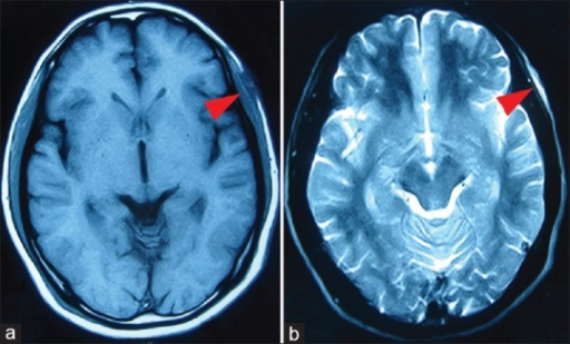 Magnetic resonance imaging shows a left temporal extracranial space-occupying lesion (red arrow) with T1 low signal (a) and T2 high signal (b)