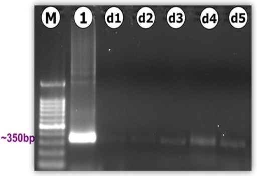 PCR amplification of the Neospora caninum-specific Nc5 region (Np21/Np6).Amplification of DNA extracts from brains of locusts experimentally infected with N. caninum showed the presence of genetic evidence of N. caninum in the brain of locusts from day 1 (d1) to day 5 (d5) PI. M: 100-bp molecular size marker; Lane 1: positive control represent DNA extracted from ∼3 × 106 tachyzoites; lanes d1 to d5: N. caninum in brain d1 to d5.