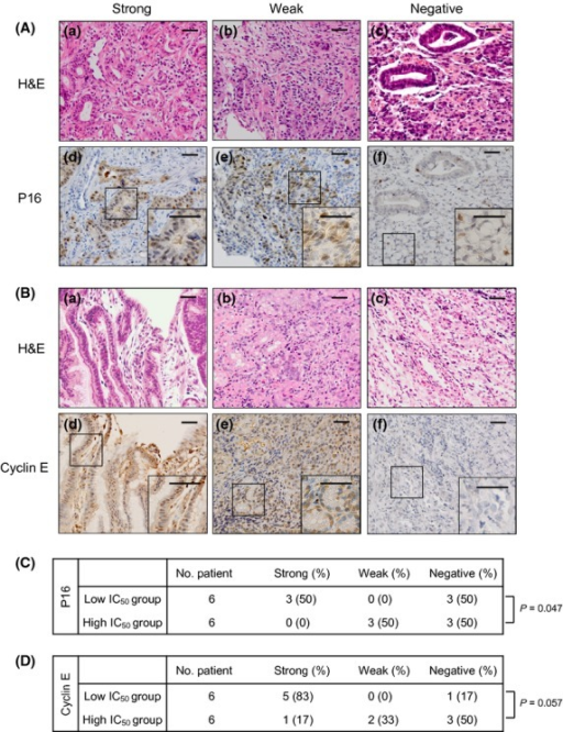 Immunohistochemical analysis for p16 or cyclin E expression in gastric cancer tissue. (A, B) Representative microphotographs of strong, weak and negative staining for p16 or cyclin E (original magnification, ×200). Panels a–c represent H&E staining. Panels d–f represent the corresponding immunohistochemical staining for p16 or cyclin E. A magnified view (×400) of the area in the square is shown in the inset at the lower right. (C, D) Summary of immunohistochemical staining for p16 or cyclin E. The low IC50 group was defined as cases with IC50 values lower than the median IC50 value of 3.25 nM. The high IC50 group was defined as cases with IC50 values equal to or greater than 3.25 nM. Bar, 100 μm.