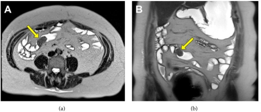 Axial (a) and coronal (b) MRE images with a large intraluminal (Peutz-Jeghers) polyp visible (yellow arrows).
