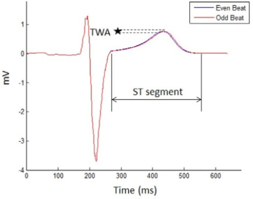 Two consecutive ECG signals are denoted as even and odd beats. The T wave alternates in shape from the even beat to the odd beat. The microvolt change in the amplitude or shape of the T waves between the beats is a TWA.