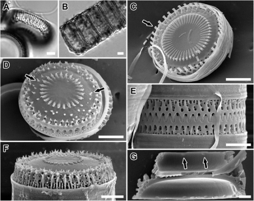 LM and SEM images ofParalia guyana'servidei' valves. (A,B) Van3C1. Light micrographs. (A) Tilted separation valve showing valve face and mantle. Note that even the characteristically pronounced prickles in this genodeme are not detectable on LM image; fenestrae notable. (B) A chain of live cells. (C-G) Scanning electron micrographs. Isotype specimens of P. guyana B40 0040796. (C,D) Van3C1. Valve face view. (C) Intercalary valve face with capitate, slender marginal spines (arrow). (D) Separation valve with pronounced prickles (arrows). (E) West1C2. Interlocked sibling intercalary valves and cingulae; upper valve with some fenestrae unobscured. (F) West1C2. Mantle view of relief separation valve showing prickles on the mantle. (G) West1C2. Internal view of valve with rimoportulae (arrows) and striae. Scale bars = 5 μm (A-F), 2 μm (G).