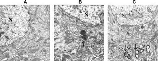 Electron micrographs of the hippocampus detected at 12 h following sham operation (a), CLP-12 h (b), and CLP + PDTC-12 h (c). a Sham-operated control rats showed organelles almost without pathological changes; no alteration of tissue integrity could be observed in low magnification images. Magnification: ×10,000. b A large autophagosome contains mitochondria and other organelles; endoplasmic reticulum matrix into adjacent lysosomal structures (arrow). Magnification: ×15,000. c CLP + PDTC-12 h displaying multiple double or multiple-membrane autophagic vesicles (arrows) in the cytoplasm, with loss of discernable organellar fragments; autophagosomes assume a more complex appearance, with redundant whorls of membrane-derived material. Magnification: ×10,000. CLP cecal ligation and puncture, PDTC pyrrolidine dithiocarbamate
