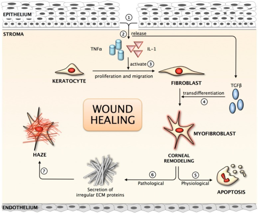 Schematic representation of the corneal wound healing mechanism. (1) Corneal injury results in the loss of basement membrane; (2) Release of pro-inflammatory cytokines into the anterior stroma; (3) Activation of quiescent keratocytes to fibroblast; (4) Growth factor released from the epithelium & TGFβ result in trans-differentiation of fibroblast to myofibroblast, the repair phenotype; (5) Under normal physiological condition, myofibroblasts undergo apoptosis following repair to the cornea; (6) In pathological conditions, myofibroblasts secrete irregular matrix; (7) Clinical observation of corneal haze in the anterior stroma.