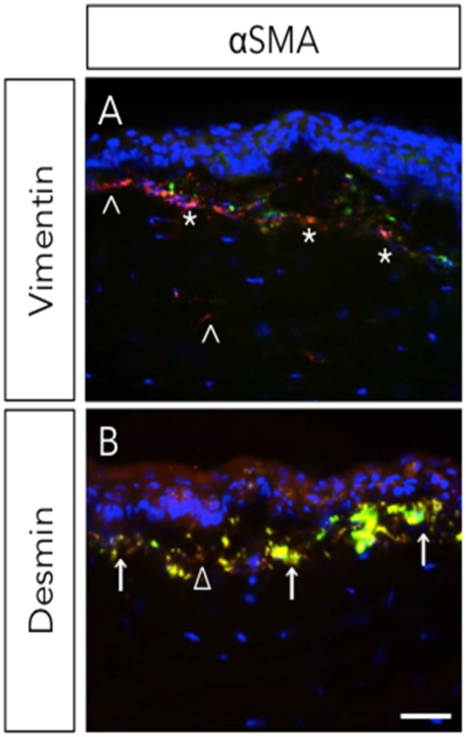 Expression of vimentin and desmin during corneal wound healing. Rabbit underwent −9D photorefractive keratectomy (PRK). Corneas were stained with αSMA (myofibroblast marker) with vimentin (A) or desmin (B) four-week post-surgery. ^, vimentin+; *, vimentin+ & αSMA+; Δ, desmin+; ↑, desmin+ & αSMA+. Scale bar = 25 μm. Reprinted from [14]. Copyright Elsevier 2009.
