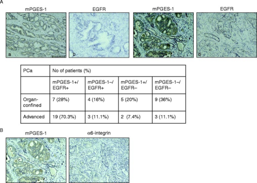 Immunohistochemical expression of mPGES-1, EGFR and α6-integrin in prostate cancer. (A) Representative images of mPGES-1 and EGFR expression in organ-confined (a and b) or advanced (c and d) prostate cancer. (B) Representative images of mPGES-1 and α6-integrin expression in advanced prostate cancer.