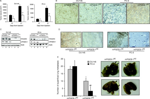 mPGES-1 expression controls in vivo tumor growth, vimentin and EGFR expression. (A). Tumor volume measured in athymic mice inoculated with DU145 and PC-3 mPGES-1SC or mPGES-1KD cells after 12 or 21 days. *P<0.05 and **P<0.01 vs mPGES-1SC. (B) Immunohistochemical analysis of Ki67 expression in tumor specimens derived from mPGES-1SCor mPGES-1KD. Data are representative of five tumor specimens for both tumor cell types. (C and D) Western blot and immunohistochemical analysis of vimentin expression in xenograft tumor tissues. Data are representative of five tumor specimens for both tumor cell types. (E). Quantification and images of lung metastasis after injection in mice tail vein of DU145 or PC-3 mPGES-1SC or mPGES-1KD cells. Images: grey frame: DU145; black frame: PC-3. *P<0.05 and ##P<0.01 vs mPGES-1SC