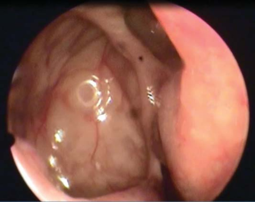 Postoperative nasal endoscopy of the right maxillary sinus 2 years after revision ESS.