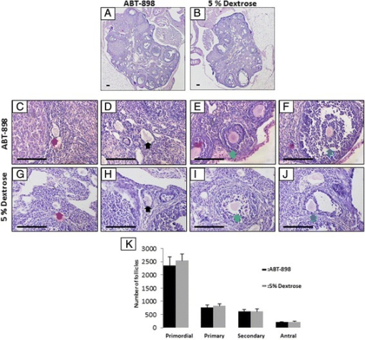 ABT-898 does not alter the number of ovarian follicles. Ovaries from mice dosed with ABT-898 (a) or 5 % dextrose (b) were sectioned and the numbers of primordial (c, g), primary (d, h), secondary (e, i) and antral (f, j) follicles were counted. The number of primordial, primary, secondary and antral follicles did not significantly differ between ABT-898 and 5 % dextrose groups (k). Red arrow: primordial follicle, black arrow: primary follicle, green arrow: secondary follicle, yellow arrow: antral follicle. Scale bar represents 75 μm. P < 0.05