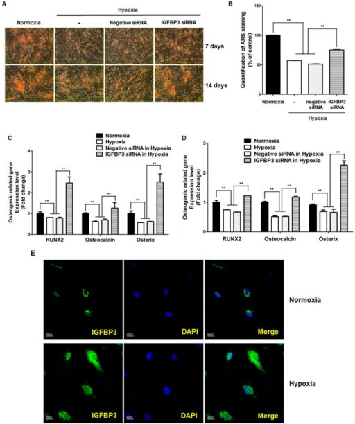 Intracellular IGFBP3 inhibits osteogenic differentiation. (A) siRNA knockdown of IGFBP3 induced ARS staining in ASCs at 7 and 14 days (40×); (B) quantification of ARS staining was measured at 7 days; (C,D) siRNA knockdown of IGFBP3 significantly attenuated hypoxia-reduced osteogenic induction markers such as RUNX2, osteocalcin, and osterix at 7 and 14 days; (E) hypoxia increased the transfer of IGFBP3 into the nuclear region of ASCs, and IGFBP3 signal (green) is increased in the nuclear region (DAPI, blue) of ASCs. ** p < 0.01.