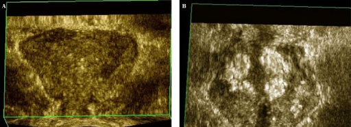 The three-dimensional ultrasound examination (USG 3D) of the prostate gland: A. The coronal section of the prostate gland before the intraprostatic administration of the antibiotic; B. The image of the prostate gland in a coronal section after the administration of the antibiotic – the control of the distribution of the antibiotic. Two symmetric hyperechogenic areas which became visible after the injection of the antibiotic are the image of a solution administered to the prostate tissue