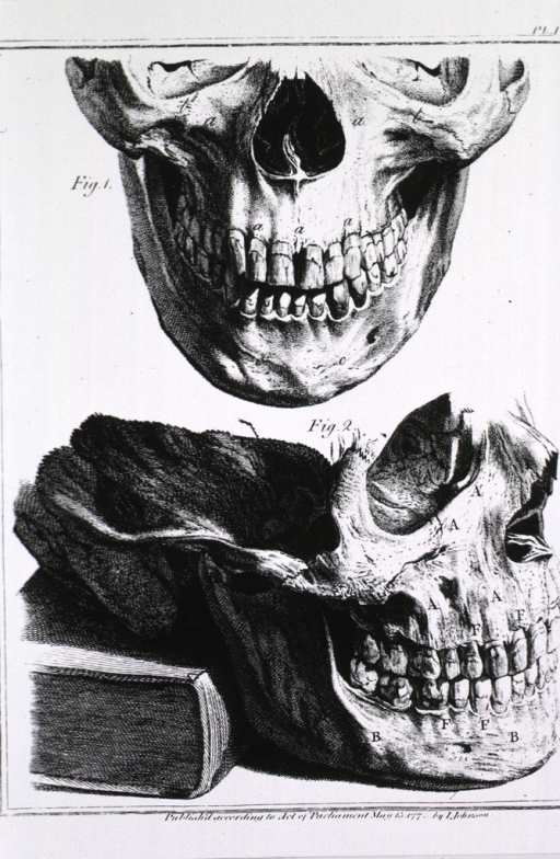 <p>Lower half of skull, front and side views.</p>