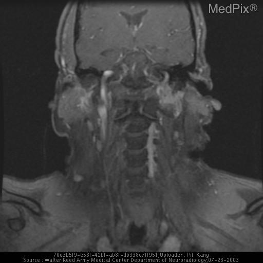 Multiple MR sequences demonstrate a mass-like area at the left suprahyoid neck known to be the patient's prior surgical site for removal of a paraganglioma, demonstrating intermediate T1 signal, high T2 signal, and enhancement.  Is this recurrence or surgical and/or radiation-induced change?