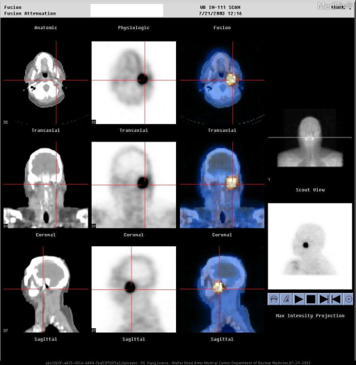 Coregistered SPECT/CT images demonstrate a focus of increased In-111-octreotide radiotracer uptake at the area corresponding to the enhancement seen on the MR images, strongly indicative that this is a recurrence of the patient's paraganglioma.
