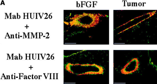 Exposure of the HUIV26 cryptic epitope is associated with the expression and activation of MMP-2 in vivo. bFGF-treated CAMs or CAMs containing CS1 melanoma tumors were costained with either Mab HUIV26 and polyclonal anti–MMP-2 (top), or Mab HUIV26 and polyclonal antifactor VIII–related antigen (bottom). (A) Tissues were visualized by incubation with rhodamine- and FITC-conjugated secondary antibodies. Top, red indicates MMP-2 and green indicates HUIV26 cryptic epitope. Bottom, red indicates factor VIII staining of blood vessels, green indicates HUIV26 cryptic epitope, and yellow indicates colocalization. Photographs were taken at 200× magnification. (B) CAMs of 10-d-old embryos were stimulated with bFGF and total CAM lysates were prepared at 2, 24, 48, and 72 h. Top, gelatin zymogram of total CAM lysates after stimulation with bFGF. Bottom, dot blot of total CAM lysates. Total collagen IV (triple helical and denatured) was detected with a polyclonal antibody to both native and denatured collagen IV. Denatured collagen IV was detected with Mab HUIV26. (C) Microtiter plates were coated with triple helical collagen type IV (25 μg/ml). MMP-2 (500 ng/ml), tPA (6 U/ml, specific activity 700 μg/mg protein), or NT (control buffer) were incubated for 18 h. The wells were washed, blocked with BSA, and the HUIV26 cryptic sites were detected with Mab HUIV26 (1.0 μg/ml). Data bars represent the mean OD ± standard deviations from triplicate wells. Bars, 50.0 μm.