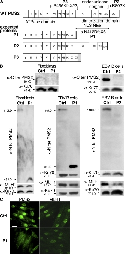 PMS2 deficiency. (A) Mutations in the PMS2 gene. Mutations in PMS2 gene and predicted proteins. (B) PMS2 protein expression in patients' fibroblasts and EBV B cell lines by Western blot analysis. Antibody raised against the C terminus of PMS2 failed to detect PMS2 in P1 fibroblasts (n = 1), whereas an antibody raised against the N terminus revealed a truncated 46-kD protein (not found in control cells) in P1 fibroblasts (n = 3) and the EBV B cell line (n = 1). The antibody specific for the N terminus of PMS2 revealed no detectable protein in P2 EBV B cells (n = 3). MLH1 expression was found to be lower in P1 fibroblasts and in P1 and P2 EBV B cell lines (n = 3) compared with control cells. (C) Subcellular localization of PMS2. Primary fibroblasts from a control and P1 were labeled with anti–N-terminal PMS2 and anti-MLH1 antibodies, followed by secondary antibody (Alexa Fluor 488). PMS2 was predominantly observed in the cytoplasm in P1 fibroblasts, contrasting with a predominantly nuclear localization in control fibroblasts. No difference was observed in terms of the subcellular localization of MLH1, although MLH1 expression appeared to be slightly lower in P1 cells (n = 3). Bar, 20 μm.
