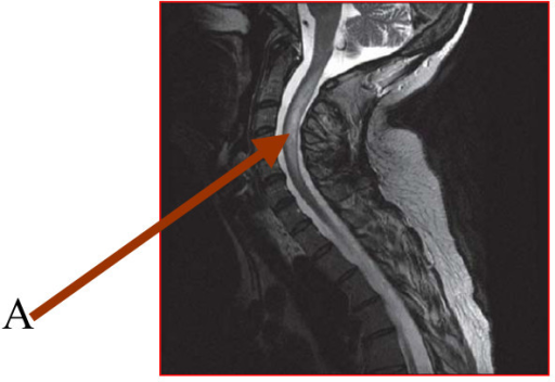 Cervical spine magnetic resonance imaging showing the hyperintense focus (Arrow A).